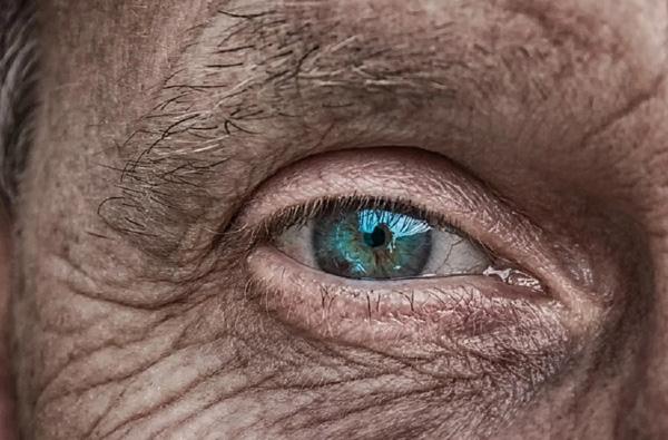 Identify Diabetes by these 6 warning symptom of skin