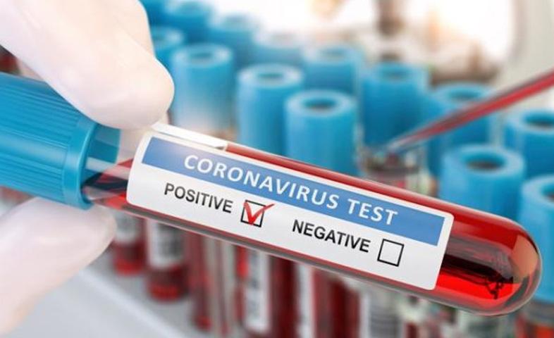 Delhi has registered 1,568 fresh coronavirus cases at a positivity rate of 2.14 per cent