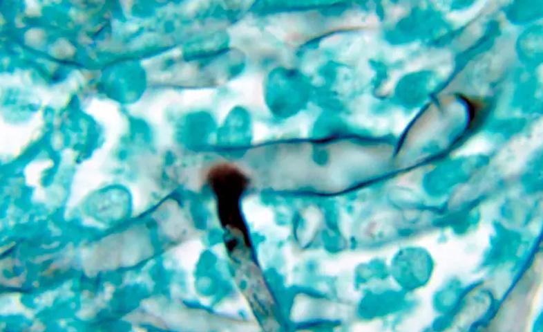4-suspected-paitents-of-black-fungus-in-govt-rajindra-hospital