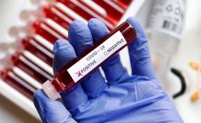 India reports 3.62 lakh new coronavirus cases